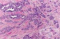 Злокачествени заболявания на гърдата
