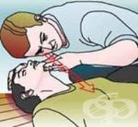 Проверете дишането на пострадалия чрез слушане или чувстване
