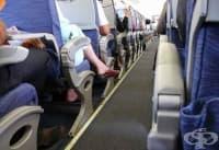 Прилагайте 5 съвета, когато пътувате със самолет, за да намалите риска от венозна тромбоза