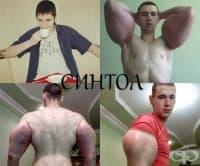 21-годишен руски бодибилдър рискува живота си след инжектиране на синтол в мускулите си