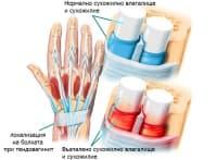 Стенозиращ тендовагинит на китката при спортисти (болест на Де Кервен)