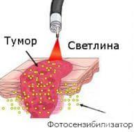 Фотодинамична терапия