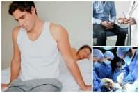 Лечение при варикоцеле