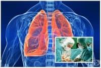 Трансплантация на бял дроб