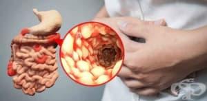 Диета и натурални средства срещу болест на Крон