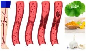 Натурални средства и билки за разреждане на кръвта