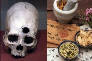 Краниотомия в Древен Китай
