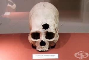 Инките - древните майстори на трепанацията