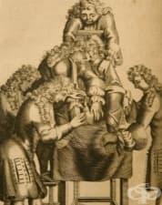 Развитие на литотомията през Ренесанса