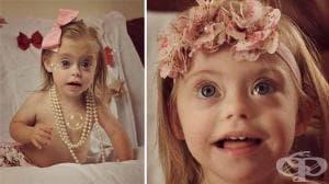 2-годишната Кони-Роуз със синдром на Даун става модел заради невероятната си усмивка