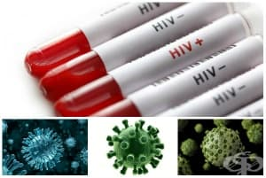Болест, предизвикана от HIV, с прояви на други вирусни инфекции