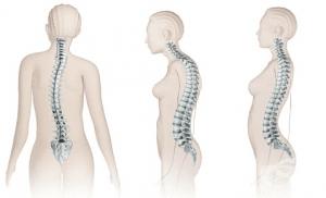 Други вродени аномалии на гръбначния стълб, несвързани със сколиоза