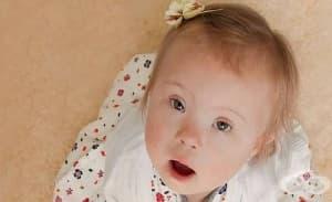 В Исландия почти не се раждат деца със синдрома на Даун
