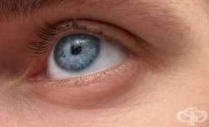 Плевенски лекари откриха 10-сантиметров паразит в окото на пациент