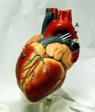 Д-р Владимир Данов показа модерна кардиохирургия