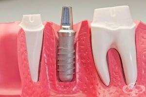 Дентални импланти, защитени от бактериално увреждане, осигуряват фототерапия срещу възпаление на венците