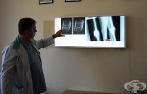 Индивидуално изработена ендопротеза бе поставена на част от бедрената кост на онкоболна жена в УМБАЛ Свети Георги