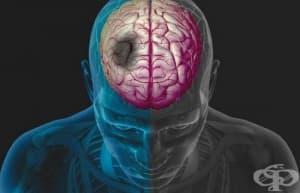 Водещи лекари от Болница Тракия с презентация на тема: Съвременно лечение на исхемичен инсулт – предизвикателство и реален клиничен резултат