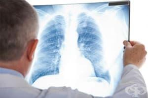 Лятната среща на пулмолозите е посветена на белодробната фиброза и астмата