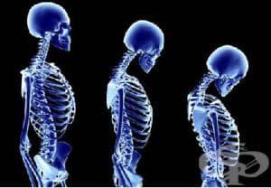 """Инициативата """"Познавате ли риска от остеопороза"""" в Ямбол"""
