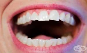Варненски студенти организират прегледи за рак на устната кухина