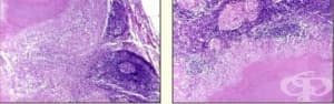 Казеозна некроза