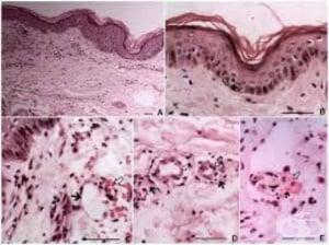 Клинична патология на епидемичен петнист тиф
