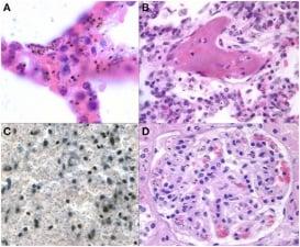 Клинична патология на малария