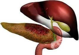 Какви са причините за поява на остър панкреатит?