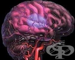 Усложнения от страна на нервната система