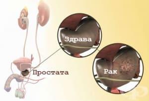 Симптоми и признаци при рак на простата
