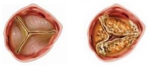 Аортна стеноза