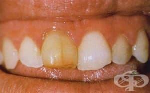 Умъртвени зъби