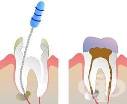 Лечение на усложнения при зъбен кариес
