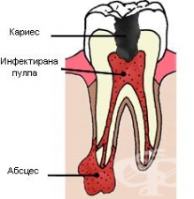 Зъбен абсцес