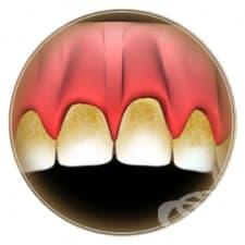 Зъбна плака
