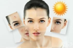 Лечение на акне и чувствителност към слънцето