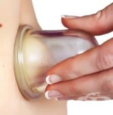 Избор на вендузи за антицелулитен масаж