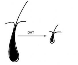 Как се поставя диагноза косопад при мъжете?