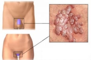 Какви са доброкачествените изменения, които могат да се наблюдават при инфекция с HPV (Human Papilloma virus)?