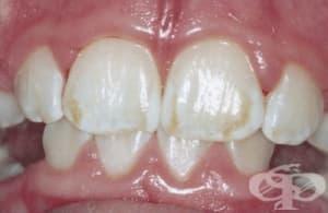 Зъбна флуроза