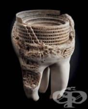 История на избелването на зъби