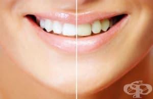 Домашни средства за избелване на зъби