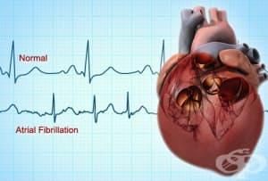 Клинично значение на предсърдното мъждене