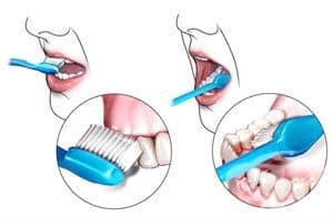 Как да мием зъбите си?