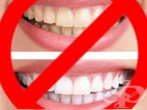 Непрепоръчително избелването на зъби