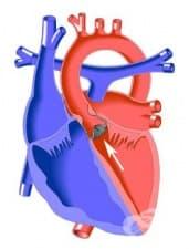 Как се отразява аортната стеноза на сърдечно-съдовата система?
