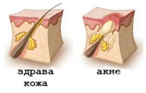 Какъв е патофизиологичният процес при акнето?