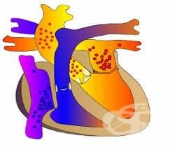 Какви са причините за възникване на аортна инсуфициенция?