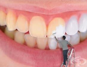 Причини за промяна в цвета на зъбите